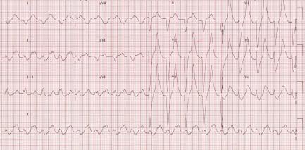 Hyperkalemia peaked T waves