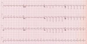 sinus-tachycardia