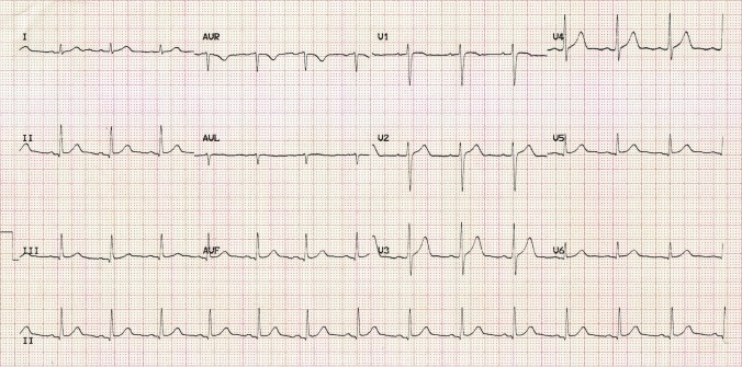normal-sinus-rhythm
