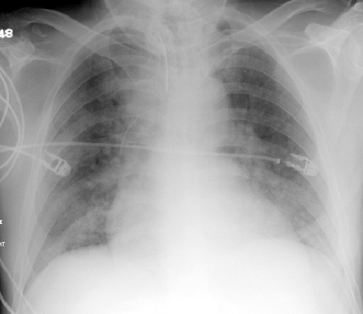 Acute Respiratory Distress Em Sim Cases
