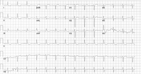 ECG lateral changes