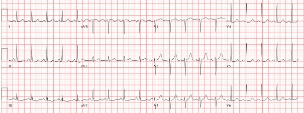 Sinus tachycardia 115