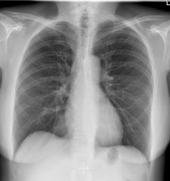 normal female CXR radiopedia