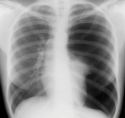 CXR Tension ptx