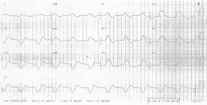 ecg90406-hyperkalaemia-pr-lengthens