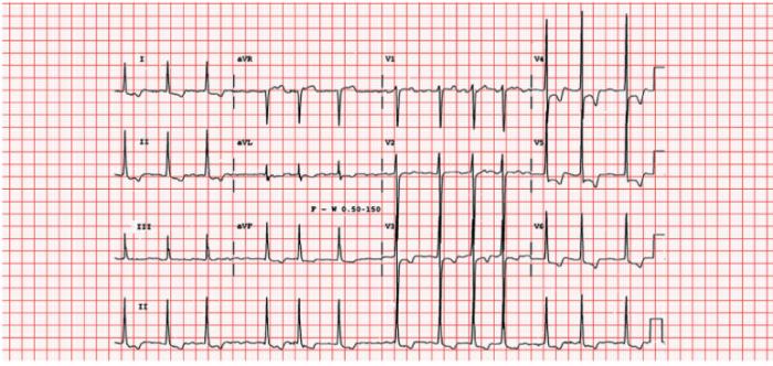 ECG- A.fib + LVH