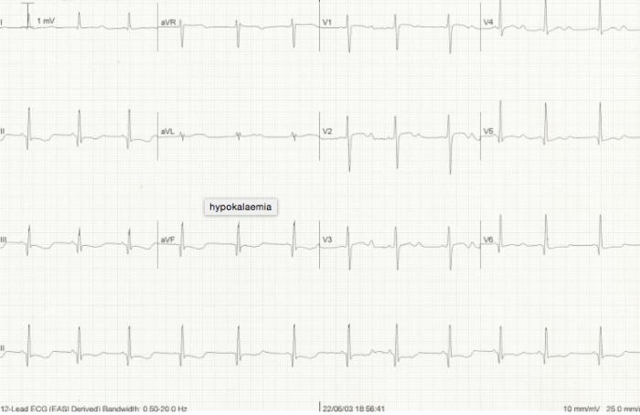Hypokalemia ECG