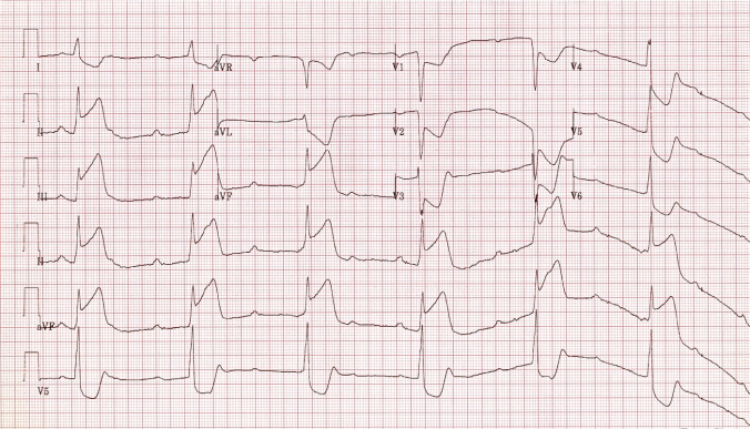 Inferior STEMI with CHB