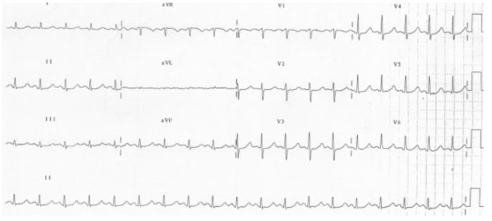 Long QT ECG