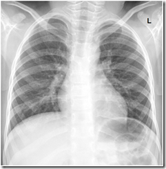 normal pediatric CXR