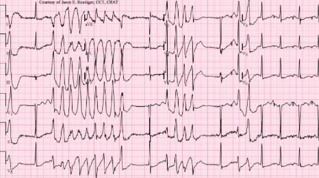 Torsades ECG