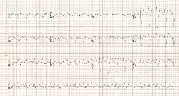 Wide QRS