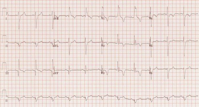 Massive PE ECG