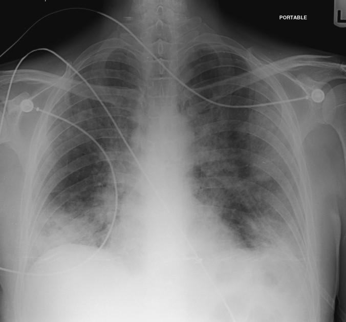 PJP pneumonia