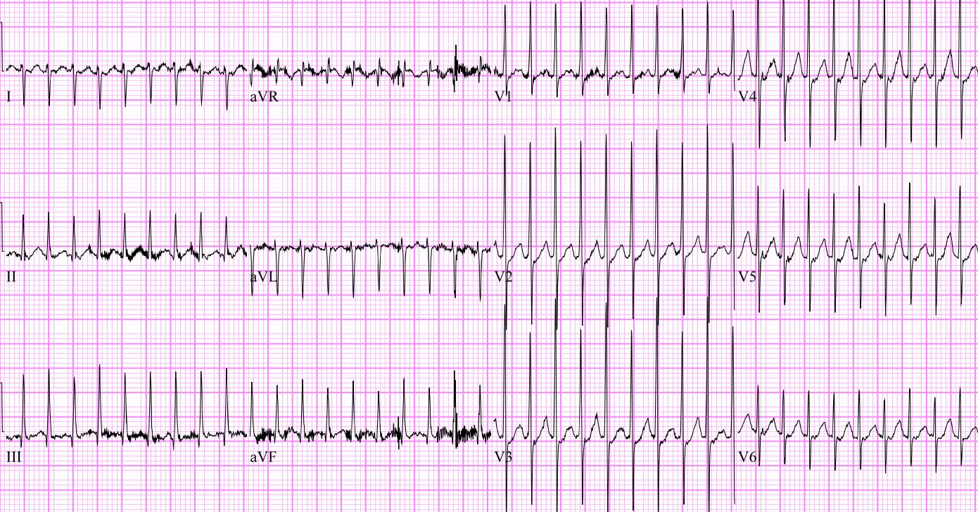 Neonatal-SVT