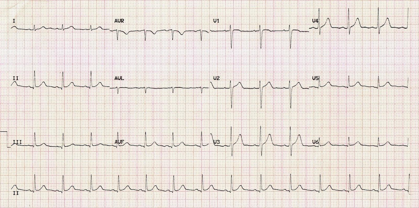 normal-sinus-rhythm (1)