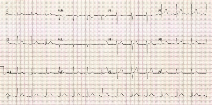 normal-sinus-rhythm (1)