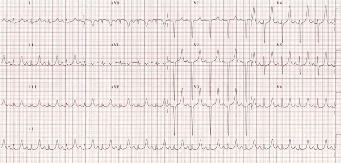 hyperkalemia narrow QRS