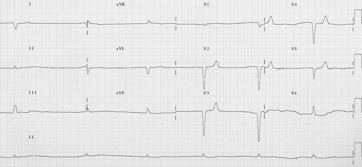 ECG-Hyperkalemia-junctional-bradycardia-potassium-8