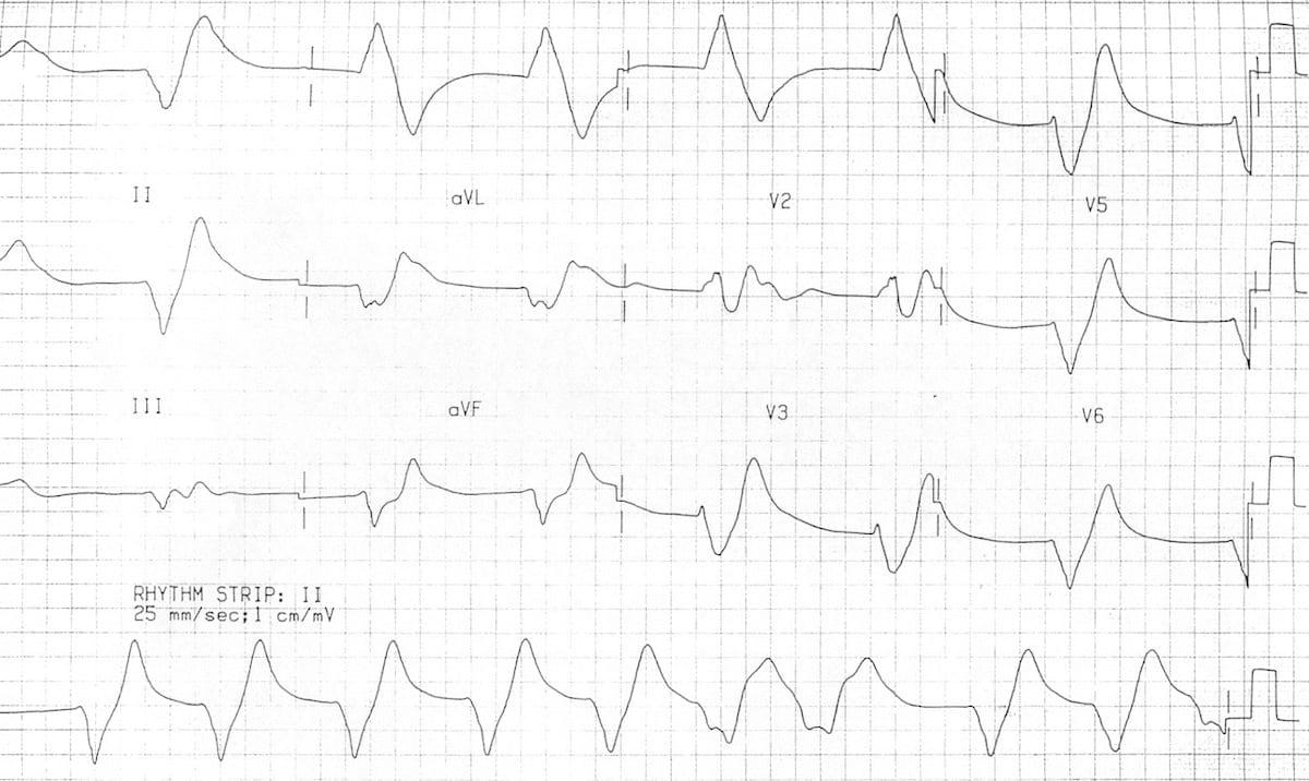 ECG-Hyperkalemia-sine-wave-serum-potassium-9.9