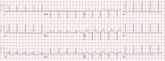 1600px-Sinustachycardia