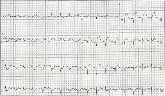 12_Lead_EKG_ST_Elevation_tracing_only